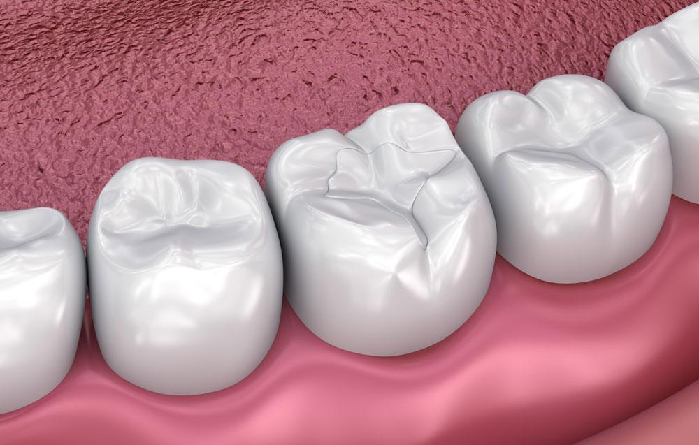 Die verschiedenen Zahnfüllungen