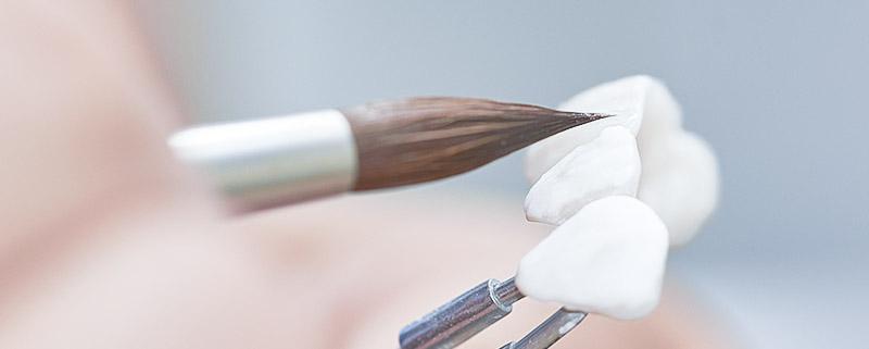 Keramische Zahnerneuerung Zahnarzt Bonn